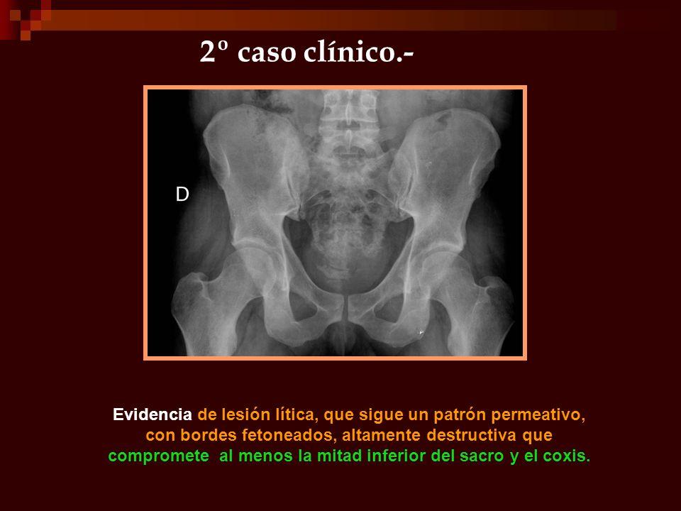 2º caso clínico.-