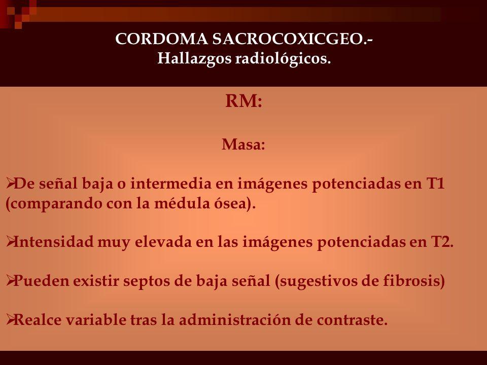 CORDOMA SACROCOXICGEO.- Hallazgos radiológicos.