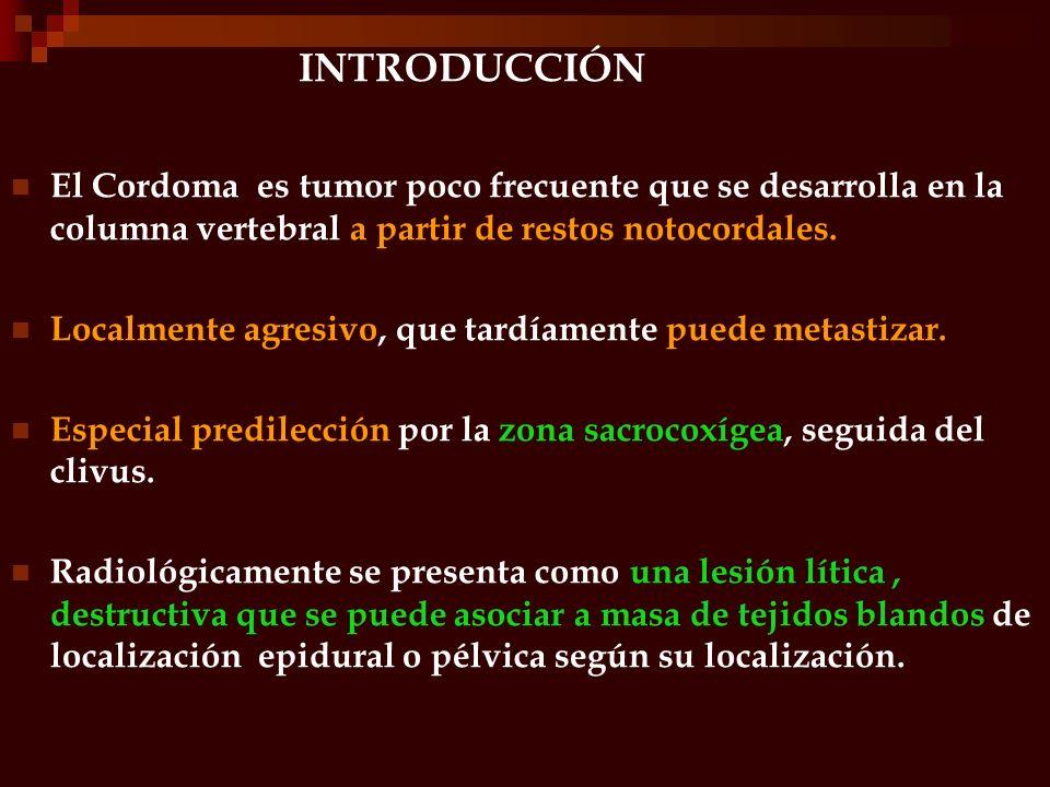 INTRODUCCIÓNEl Cordoma es tumor poco frecuente que se desarrolla en la columna vertebral a partir de restos notocordales.