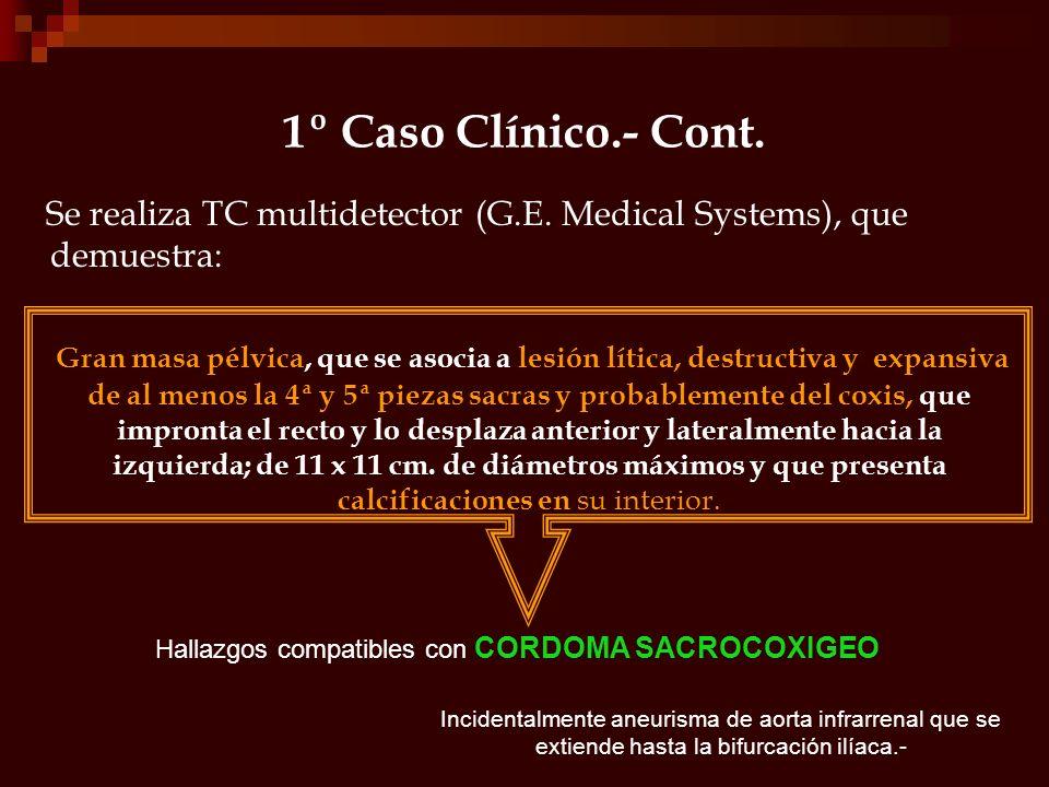 1º Caso Clínico.- Cont. Se realiza TC multidetector (G.E. Medical Systems), que demuestra: