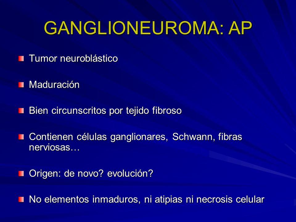 GANGLIONEUROMA: AP Tumor neuroblástico Maduración