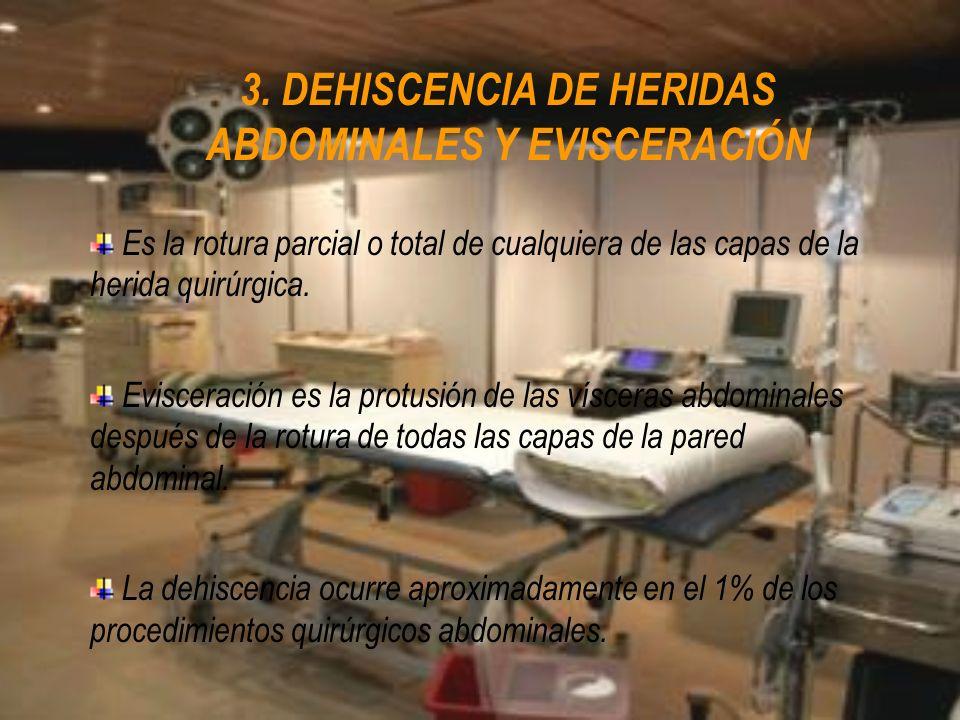 3. DEHISCENCIA DE HERIDAS ABDOMINALES Y EVISCERACIÓN