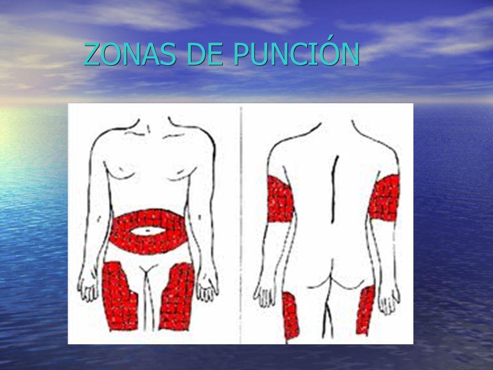 ZONAS DE PUNCIÓN