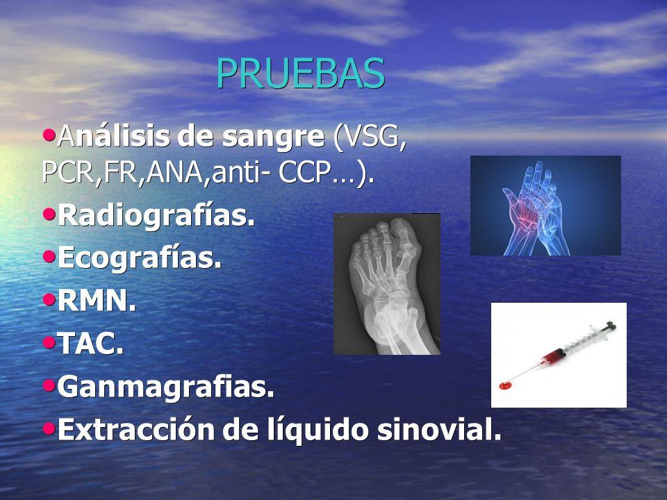 PRUEBAS Análisis de sangre (VSG, PCR,FR,ANA,anti- CCP…). Radiografías.