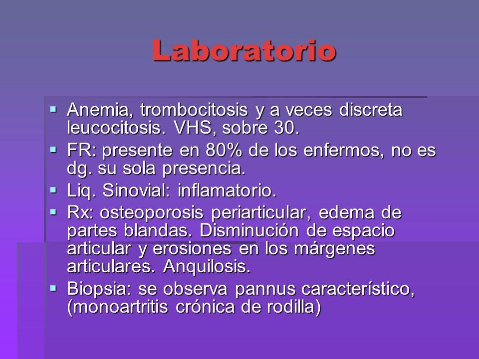 LaboratorioAnemia, trombocitosis y a veces discreta leucocitosis. VHS, sobre 30. FR: presente en 80% de los enfermos, no es dg. su sola presencia.