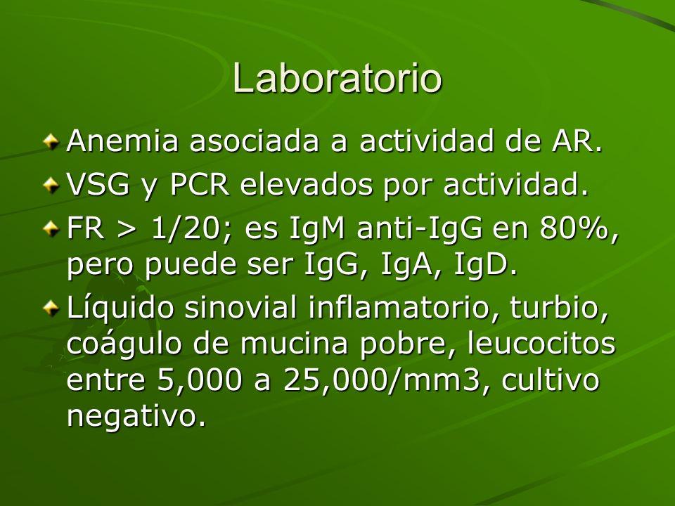 Laboratorio Anemia asociada a actividad de AR.