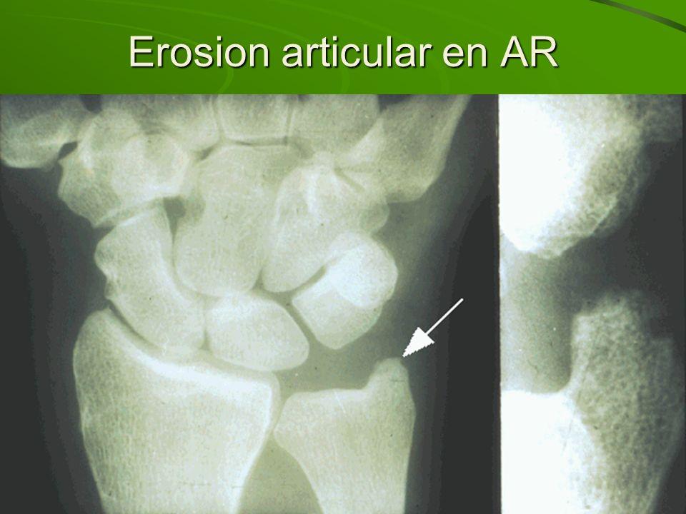 Erosion articular en AR
