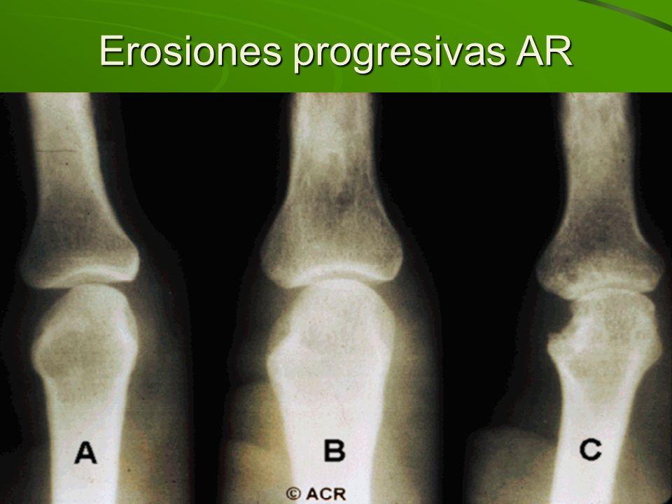 Erosiones progresivas AR