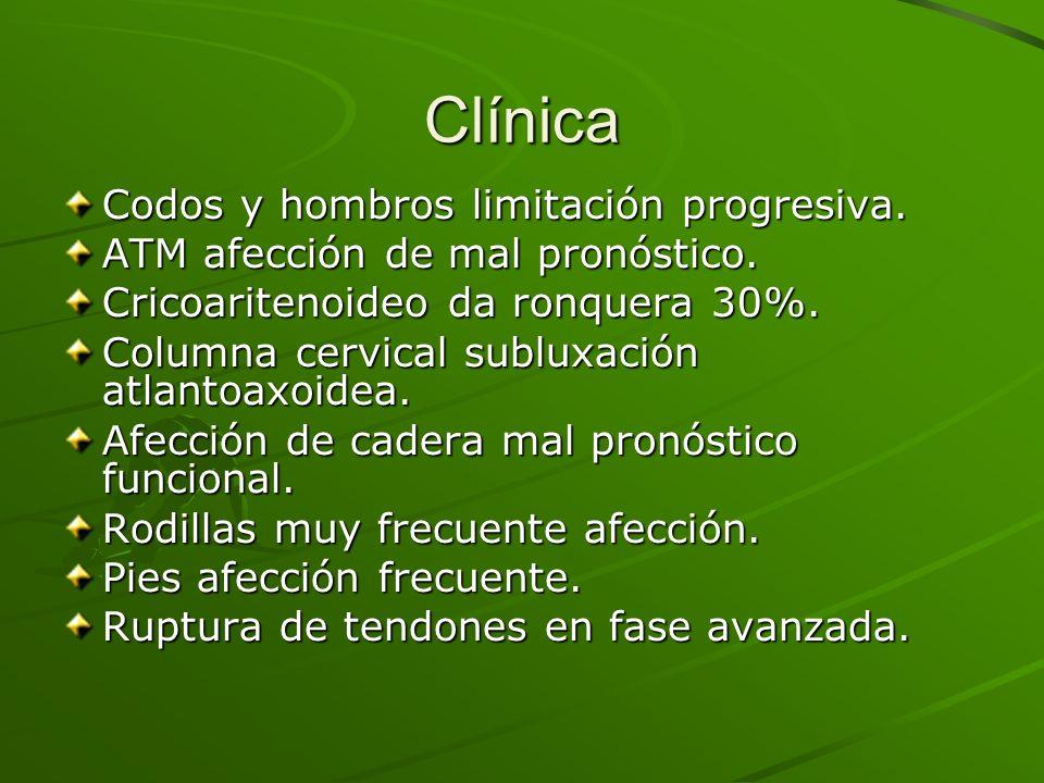 Clínica Codos y hombros limitación progresiva.