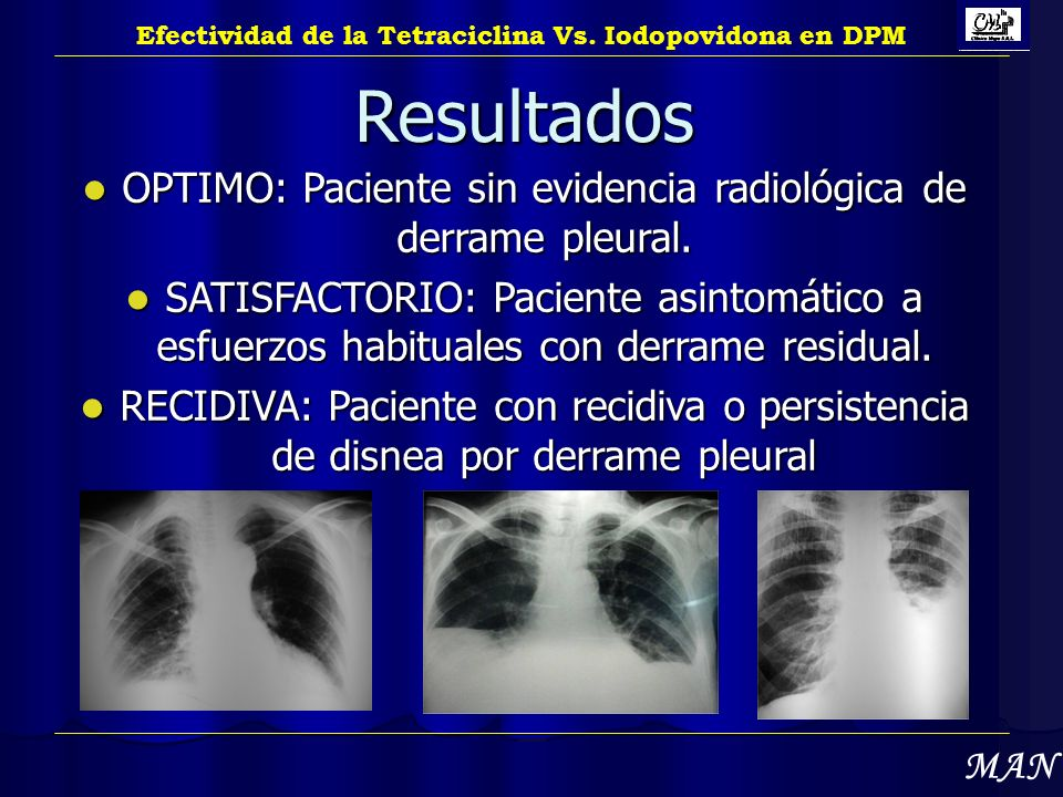 OPTIMO: Paciente sin evidencia radiológica de derrame pleural.