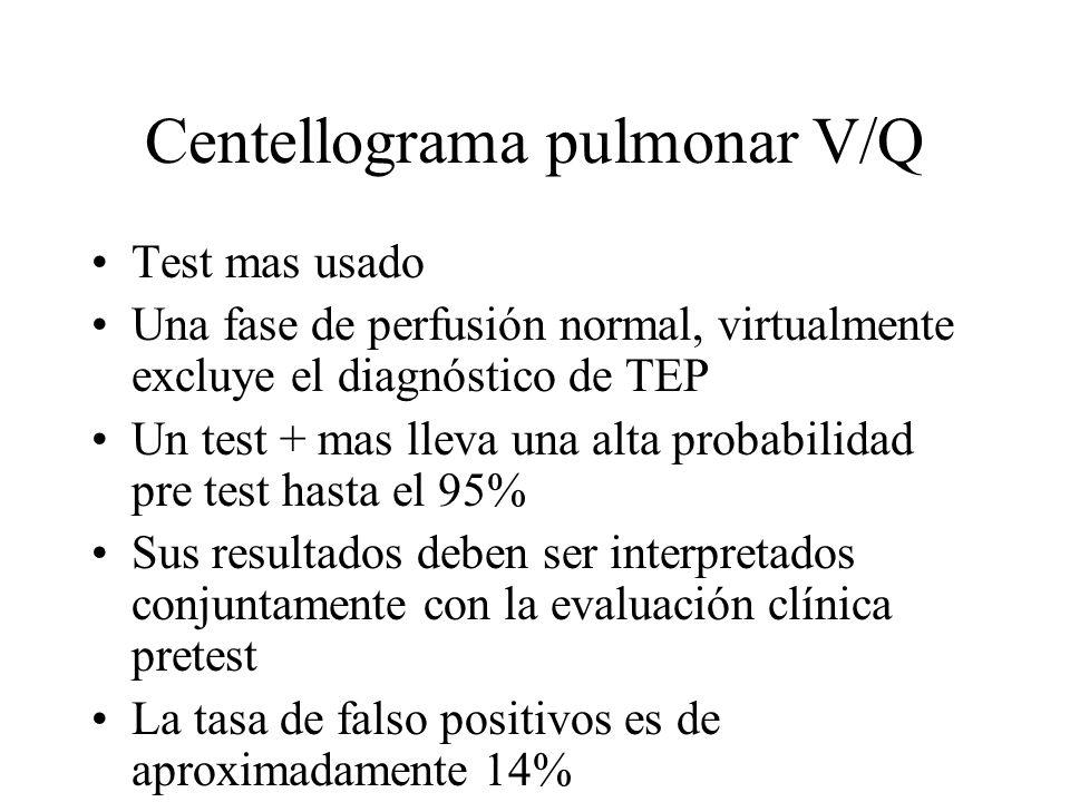 Centellograma pulmonar V/Q