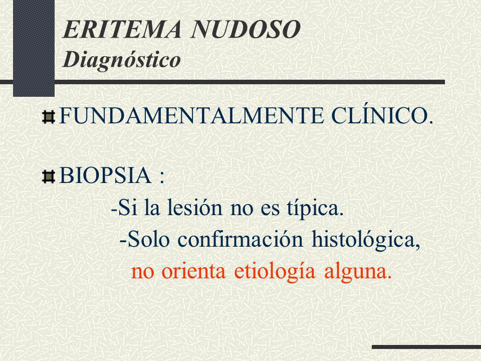 ERITEMA NUDOSO Diagnóstico