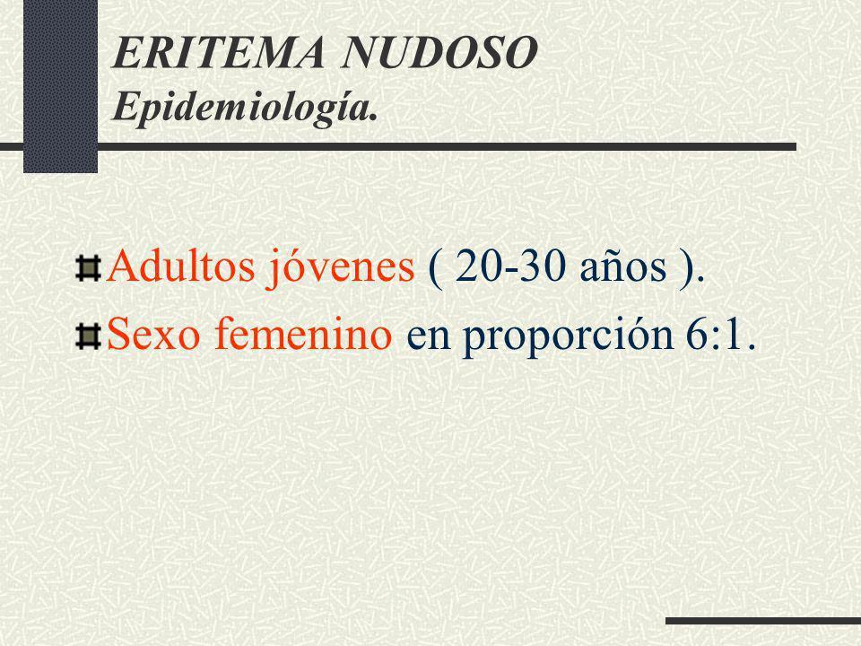 ERITEMA NUDOSO Epidemiología.