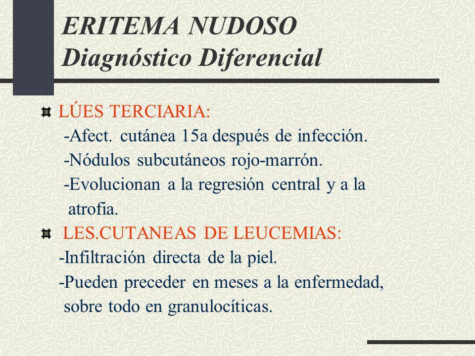 ERITEMA NUDOSO Diagnóstico Diferencial