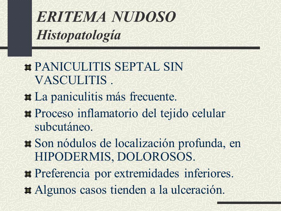 ERITEMA NUDOSO Histopatología