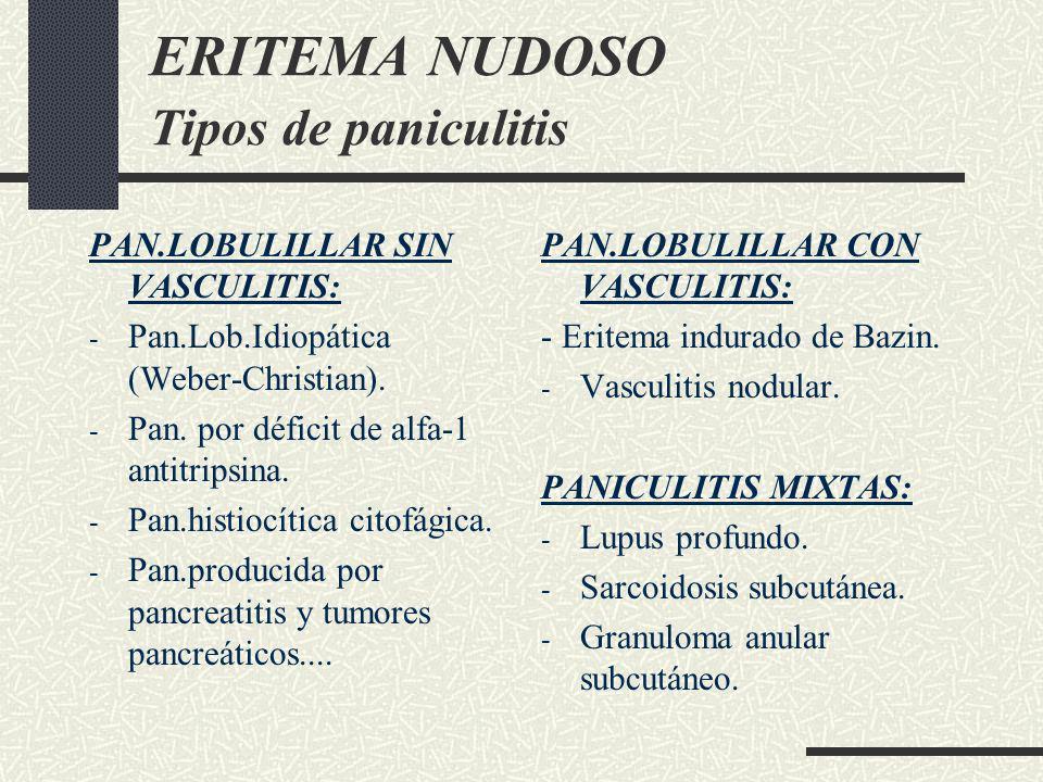 ERITEMA NUDOSO Tipos de paniculitis