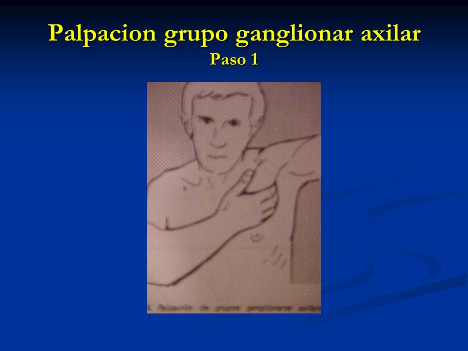 Palpacion grupo ganglionar axilar Paso 1