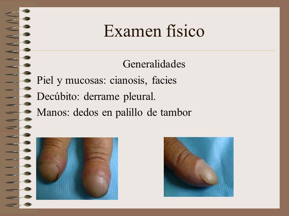 Examen físico Generalidades Piel y mucosas: cianosis, facies