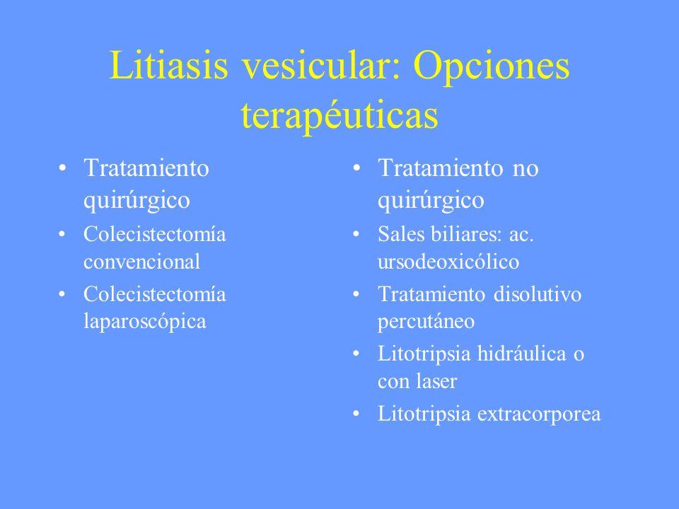 Litiasis vesicular: Opciones terapéuticas