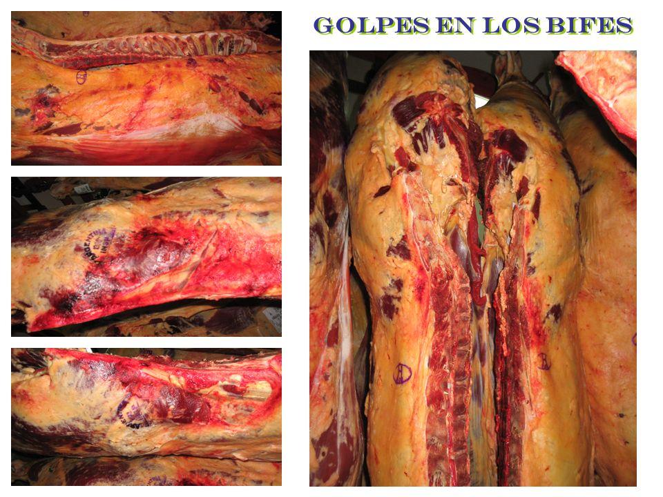 GOLPES EN LOS BIFES