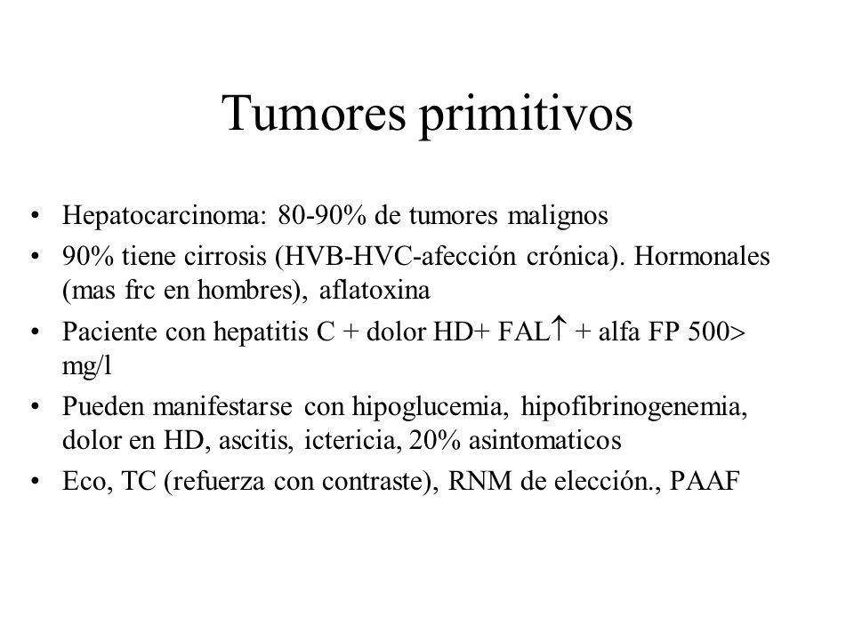 Tumores primitivos Hepatocarcinoma: 80-90% de tumores malignos