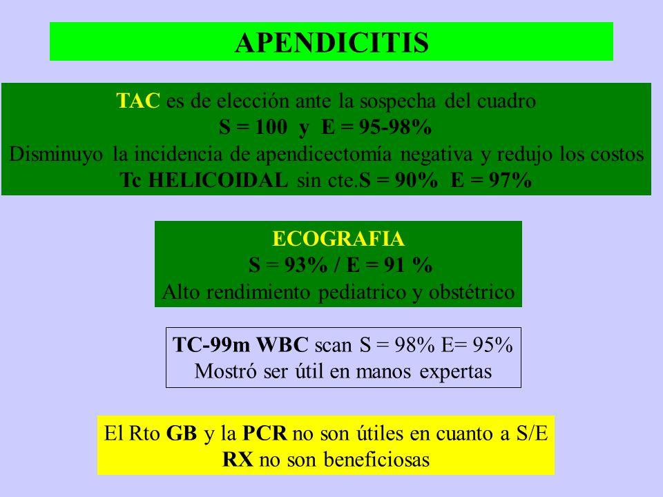 APENDICITIS TAC es de elección ante la sospecha del cuadro