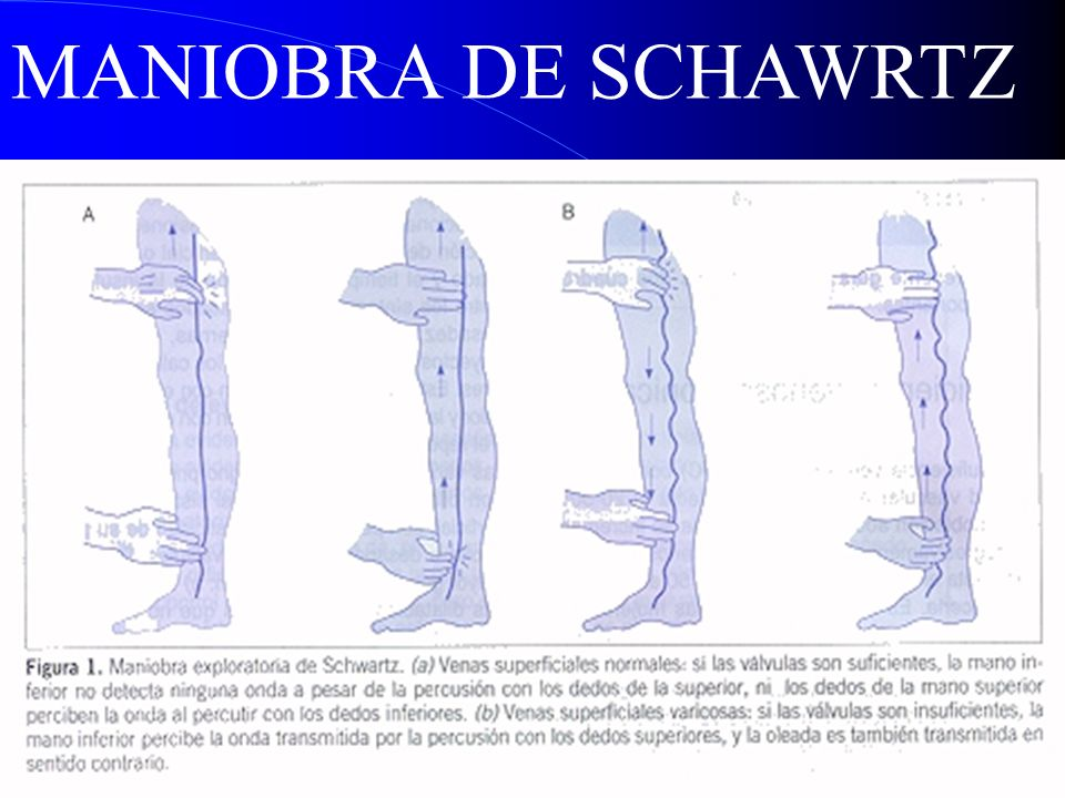 MANIOBRA DE SCHAWRTZ