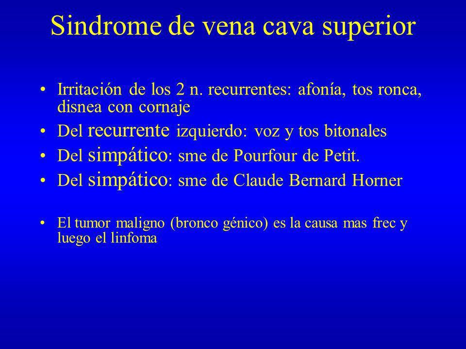 Sindrome de vena cava superior