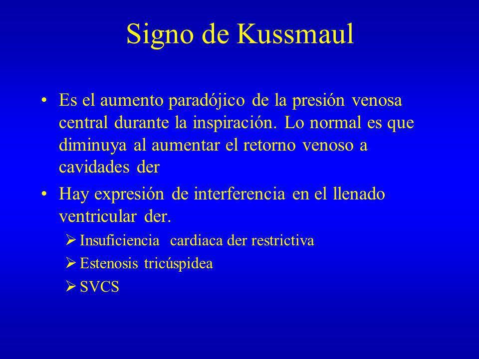 Signo de Kussmaul