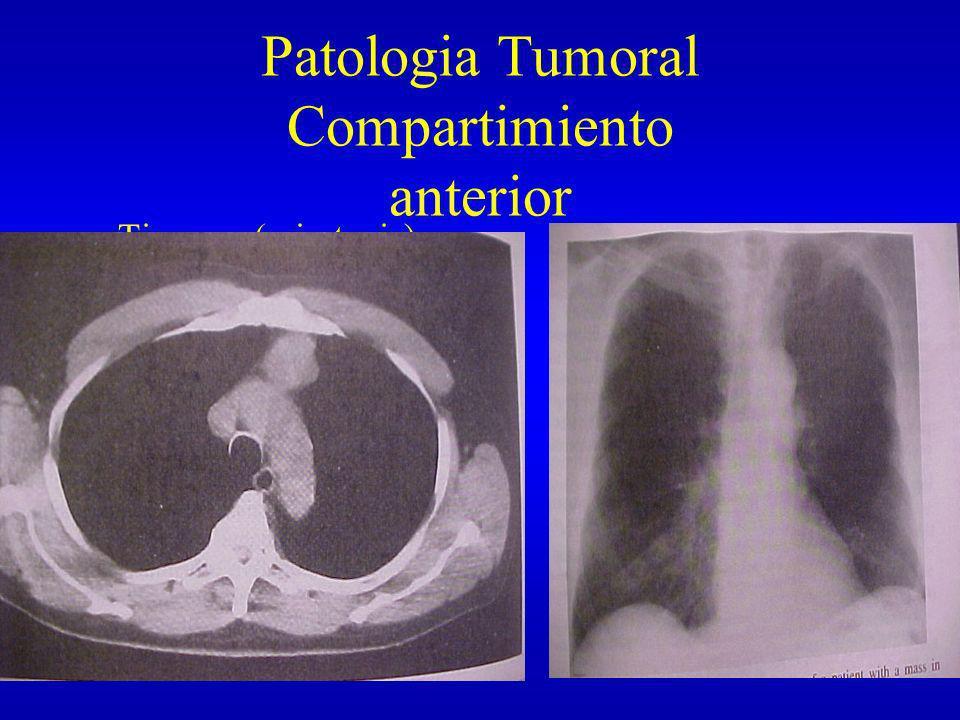 Patologia Tumoral Compartimiento anterior