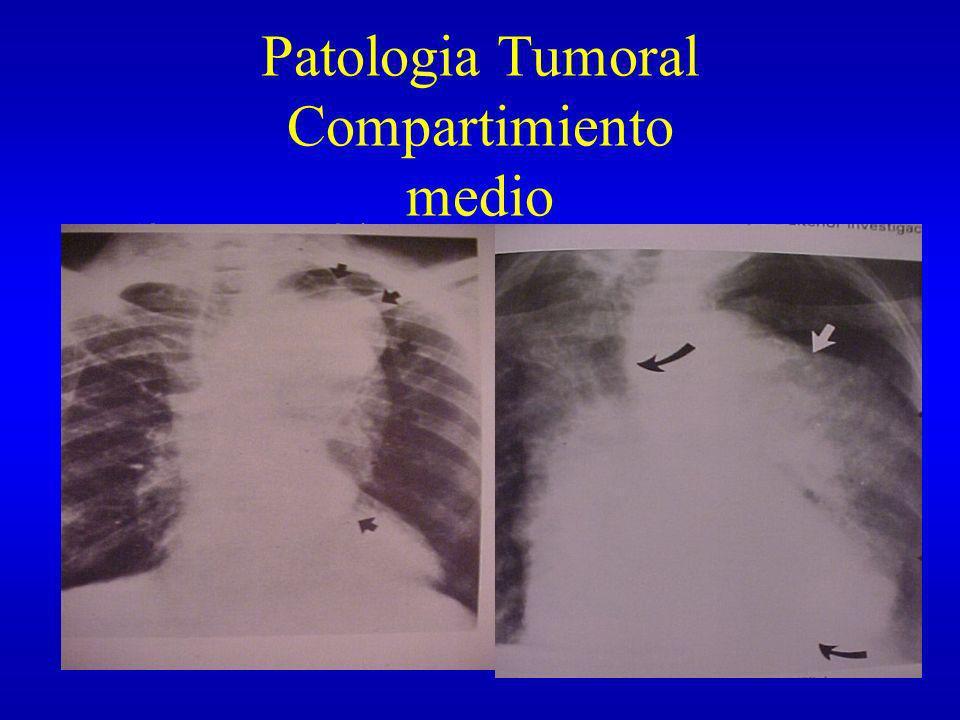Patologia Tumoral Compartimiento medio