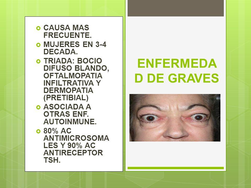 ENFERMEDAD DE GRAVES CAUSA MAS FRECUENTE. MUJERES EN 3-4 DECADA.