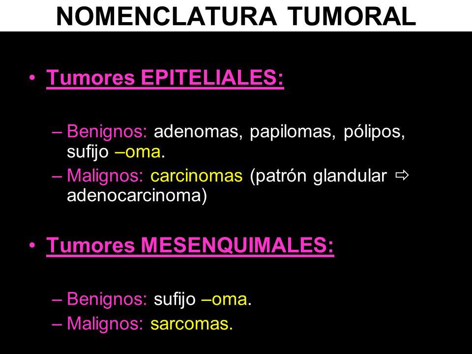 NOMENCLATURA TUMORAL Tumores EPITELIALES: Tumores MESENQUIMALES: