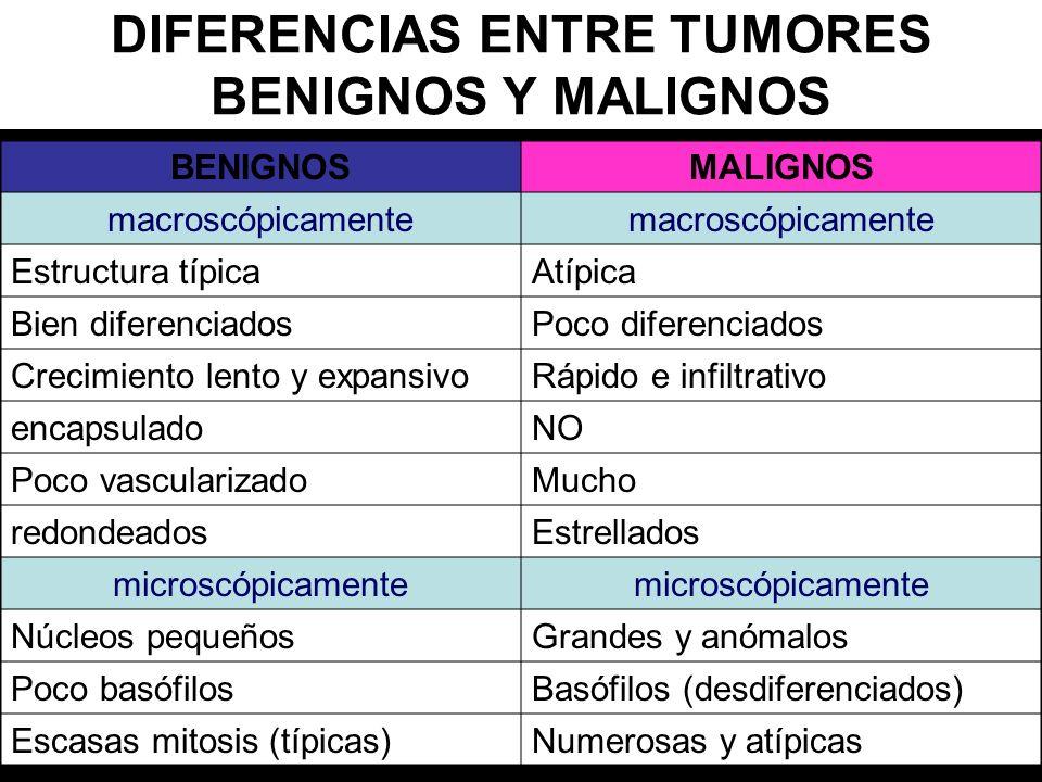 DIFERENCIAS ENTRE TUMORES BENIGNOS Y MALIGNOS