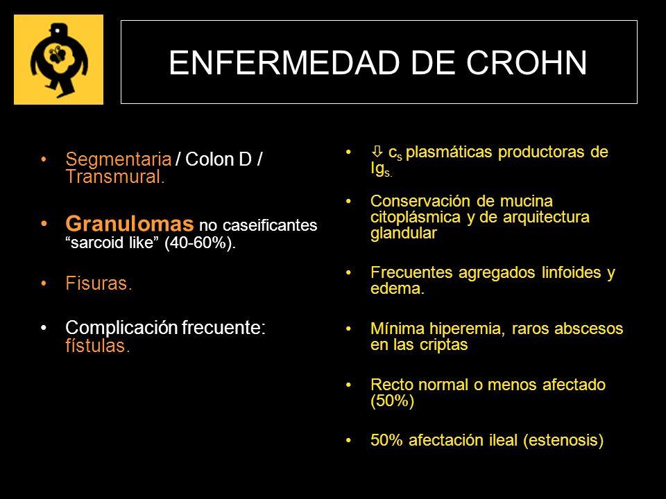 ENFERMEDAD DE CROHN  cs plasmáticas productoras de Igs. Conservación de mucina citoplásmica y de arquitectura glandular.