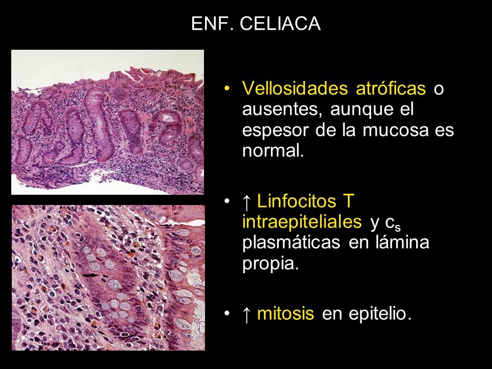 ENF. CELIACA Vellosidades atróficas o ausentes, aunque el espesor de la mucosa es normal.