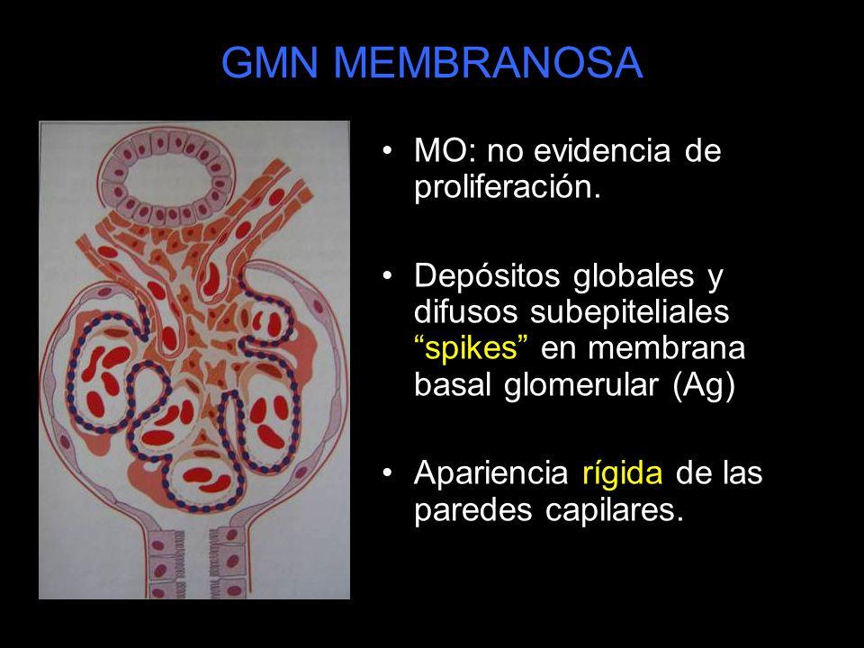 GMN MEMBRANOSA MO: no evidencia de proliferación.