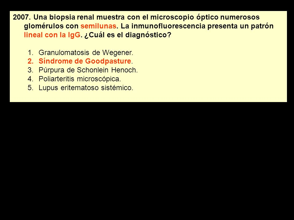2007. Una biopsia renal muestra con el microscopio óptico numerosos glomérulos con semilunas. La inmunofluorescencia presenta un patrón lineal con la IgG. ¿Cuál es el diagnóstico