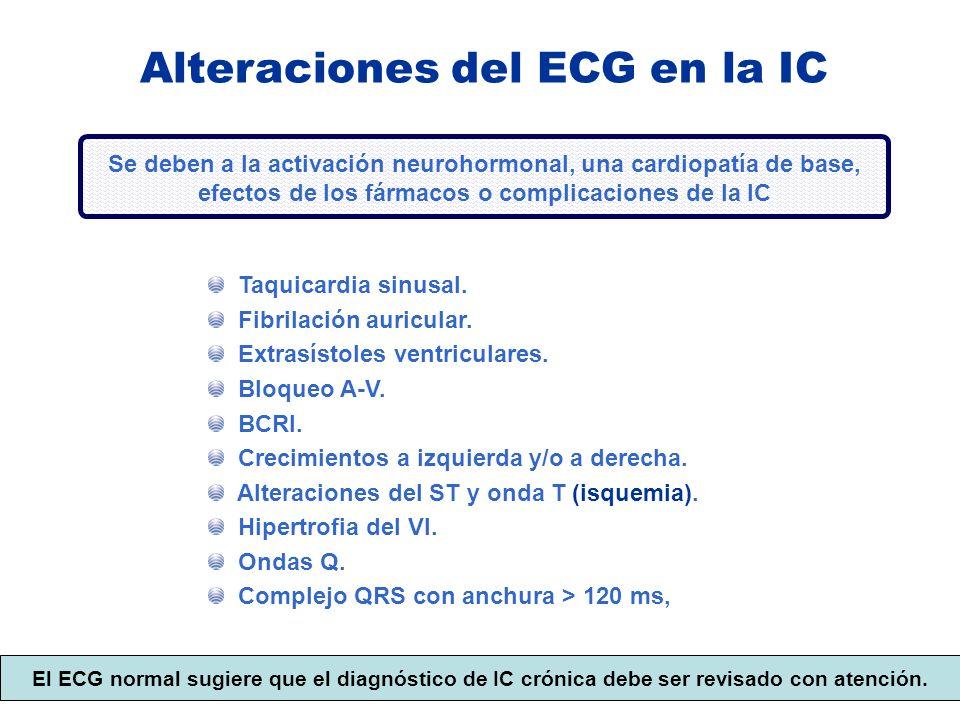 Alteraciones del ECG en la IC
