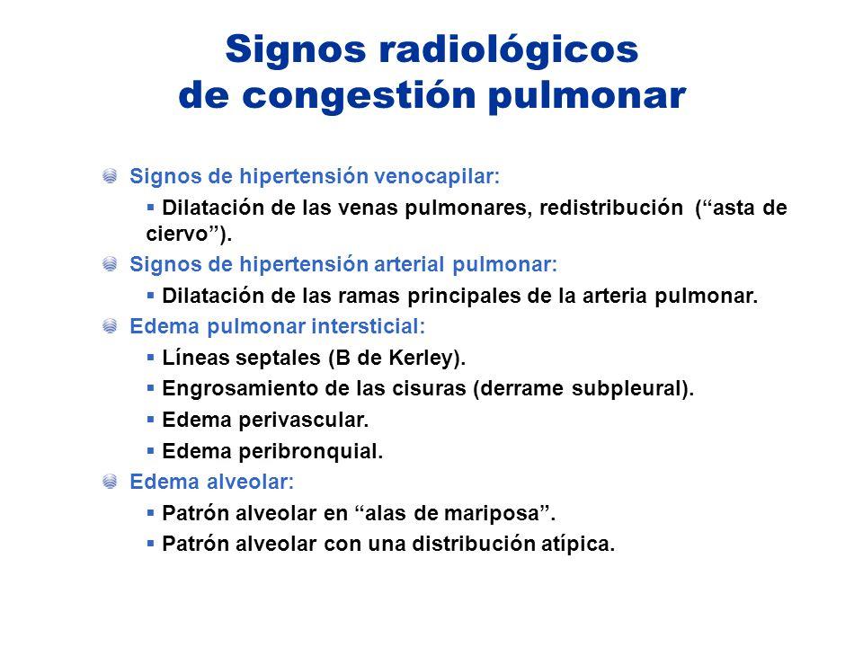 Signos radiológicos de congestión pulmonar