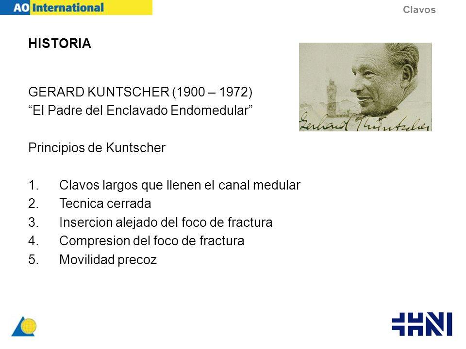 El Padre del Enclavado Endomedular Principios de Kuntscher