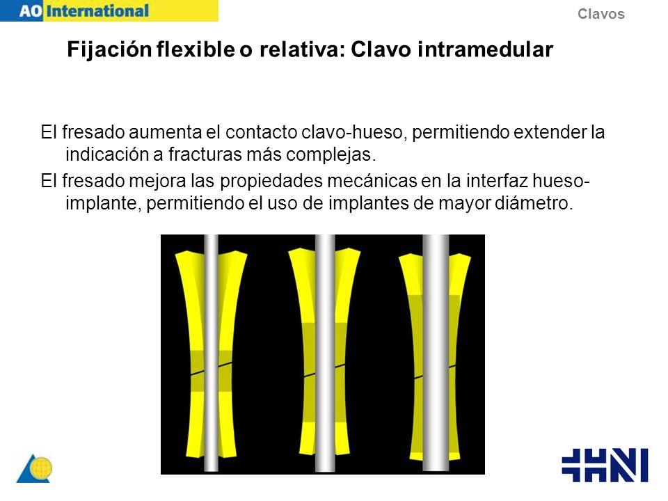 Fijación flexible o relativa: Clavo intramedular