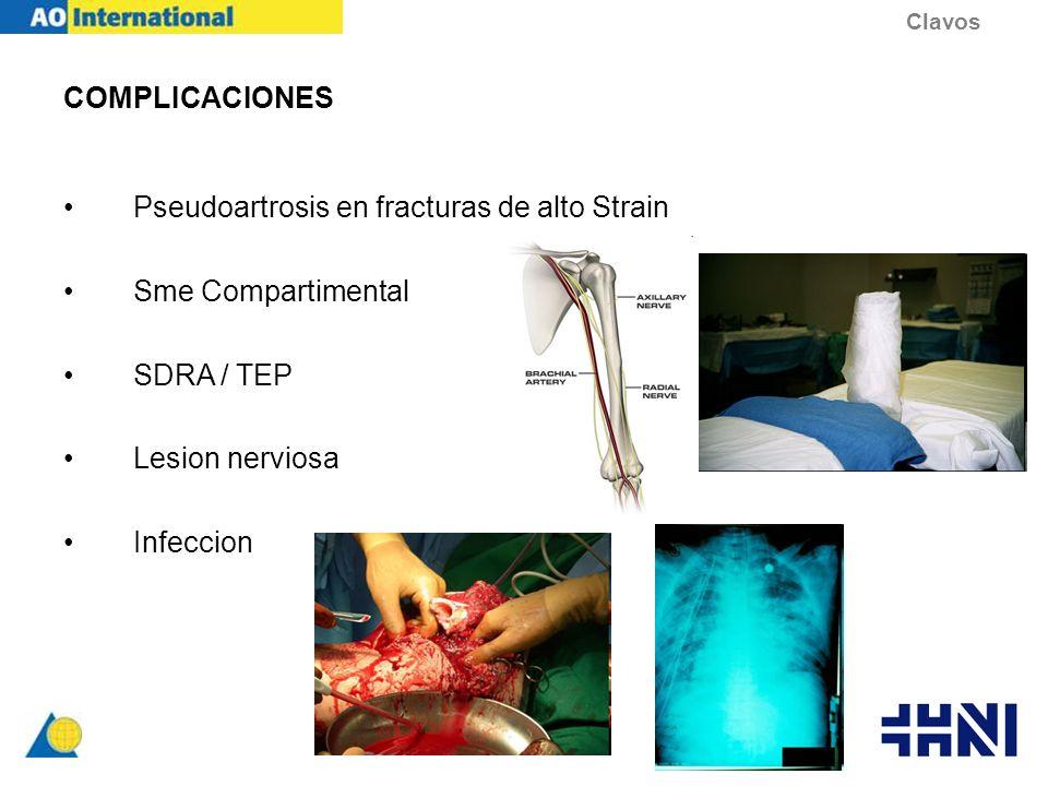 Pseudoartrosis en fracturas de alto Strain Sme Compartimental