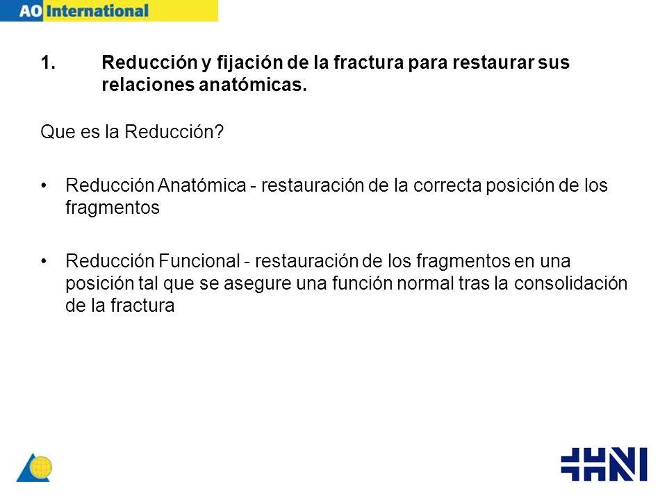 Reducción y fijación de la fractura para restaurar sus relaciones anatómicas.