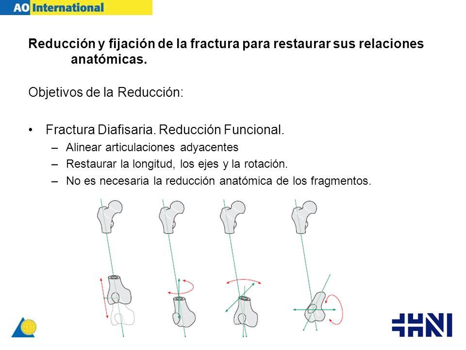 Objetivos de la Reducción: Fractura Diafisaria. Reducción Funcional.