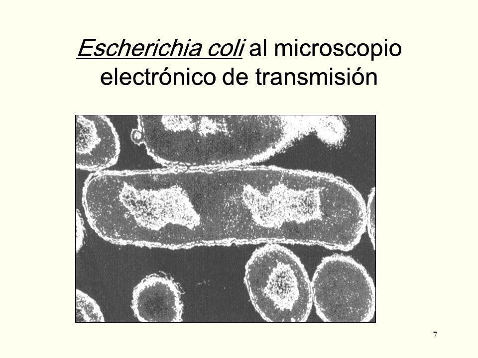 Escherichia coli al microscopio electrónico de transmisión