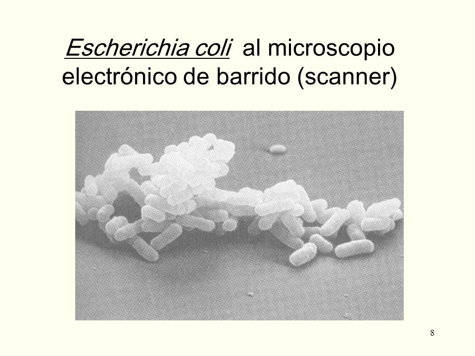 Escherichia coli al microscopio electrónico de barrido (scanner)