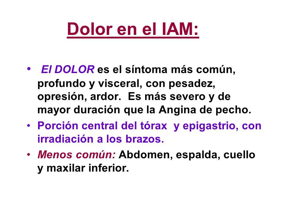 Dolor en el IAM: