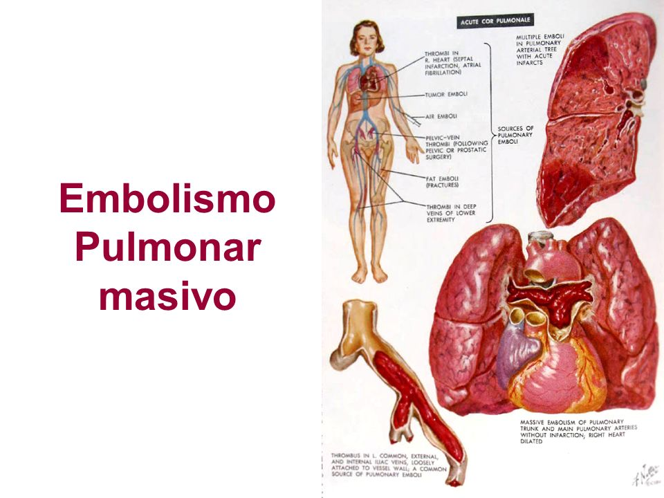 Embolismo Pulmonar masivo