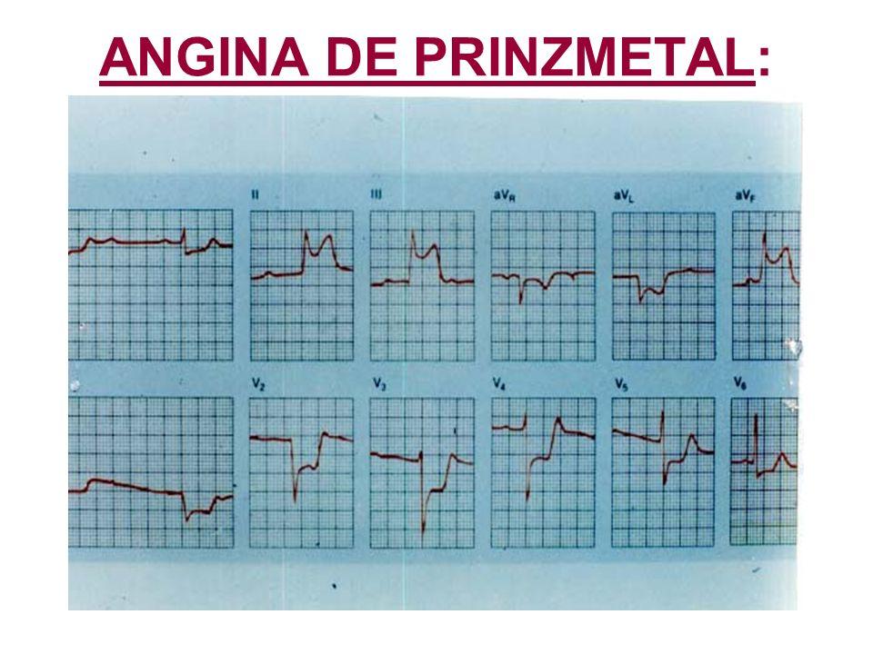 ANGINA DE PRINZMETAL: